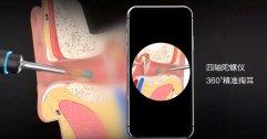 Xiaomi เปิดตัว Bebird M9 Pro ไม้แคะหูติดกล้อง เชื่อมต่อสมาร์ตโฟนส่องขี้หูได้ รับรองฟิน!!