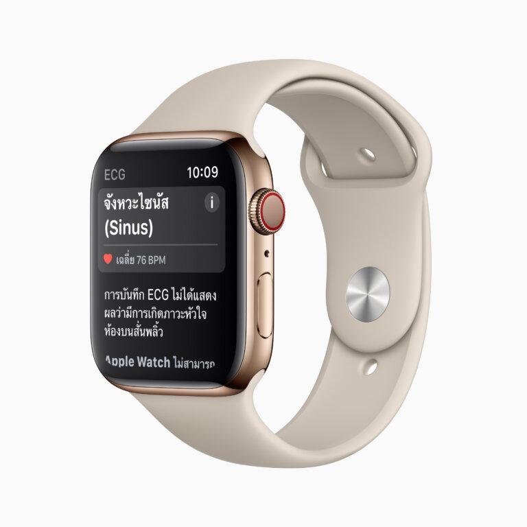 apple watch result sinusrhythm screen 12082020